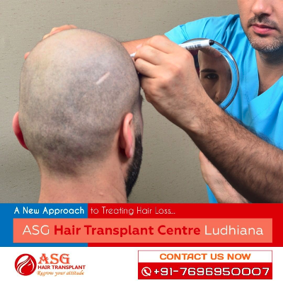 ASG Hair Transplant Centre in Jalandhar Profile Image